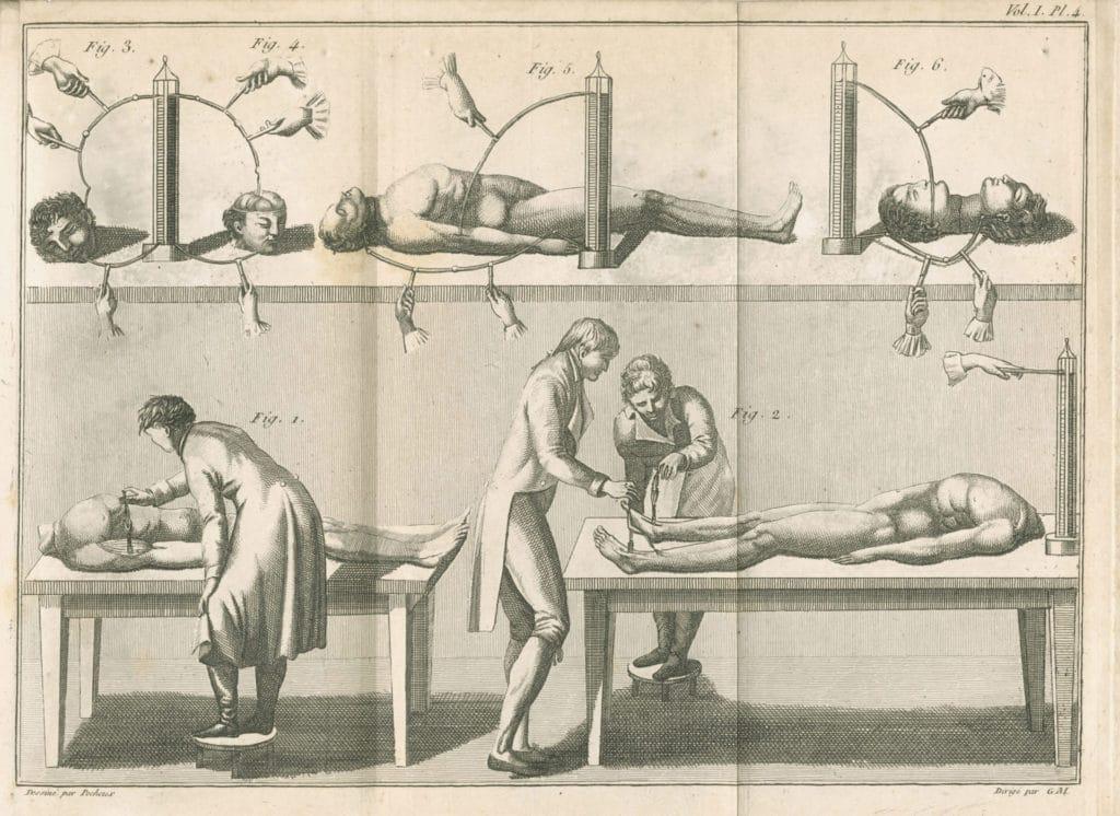 Aldini, J_Essai theorique et experimental sur le galvanisme_1804_pl4